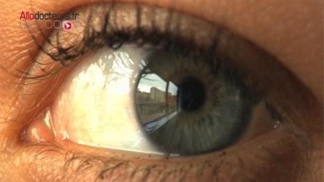 Glaucome : une lentille de contact qui diffuse des médicaments : Allodocteurs.fr | Le monde pharmaceutique | Scoop.it