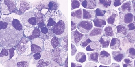 Découverte d'une molécule qui multiplie les cellules souches | Santé & Médecine | Scoop.it