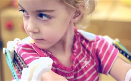 3D Printer Creates 'Magic Arms' For Two-Year-Old Girl | 3D Prototyping | Scoop.it