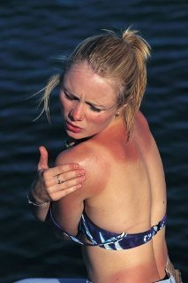 New Skin Patch Warns People When It's Time to Get Out of the Sun   Amazing Science   Scoop.it