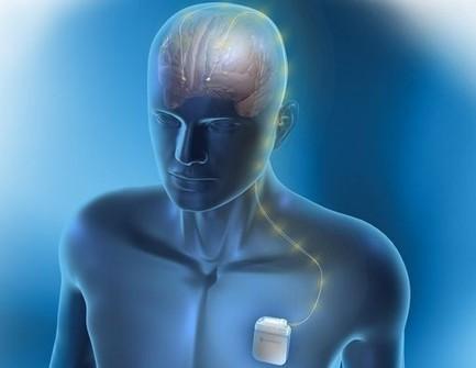 Parkinson : vers des indications élargies de la neurostimulation - News Santé - Doctissimo | Neurologie S.V.T | Scoop.it