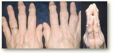 Artrite reumatoide, la terapia a domicilio funziona: cose da sapere - Farmacia.it | Domedica | Scoop.it