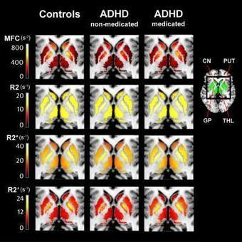 MRI technique may help prevent ADHD misdiagnosis | Science Codex | Abnormal Psychology | Scoop.it