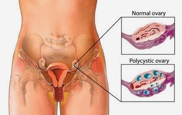 Polycystic Ovary Syndrome: Causes, Symptoms, and Home Remedies | Diseases and Conditions | Scoop.it