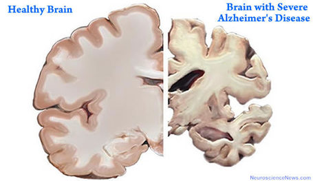 New Diagnostic Biomarkers Offer Ray of Hope for Alzheimer's Disease | Generation Genetik | Scoop.it
