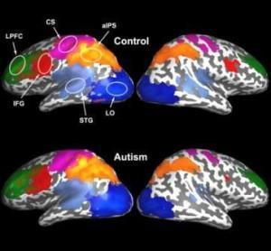 Weak synchronization in toddler brains may be a biological marker for autism | Biomarkers and Personalized Medicine | Scoop.it