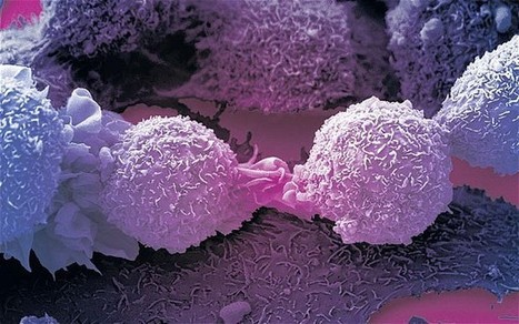 Scientists find key to 'turbo-charging' immune system to kill all cancers - Telegraph.co.uk | Limitless learning Universe | Scoop.it