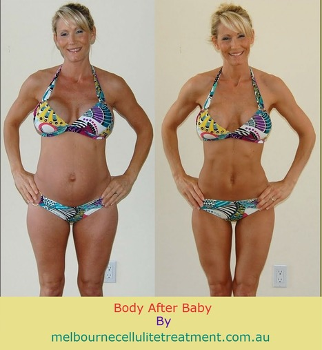 Treat  Body After Baby Birth With Effective Velashape Treatment Service | Post pregnancy body shaping | Scoop.it