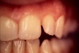 Dentiste Facette dentaire Paris- R. AMOUYAL- Cas facette céramique | Facette dentaire | Scoop.it