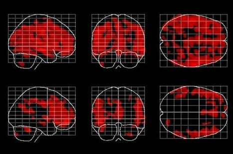 Forever young: Meditation might slow the age-related loss of gray matter in the brain, say UCLA researchers   UCLA   Breathwork   Scoop.it