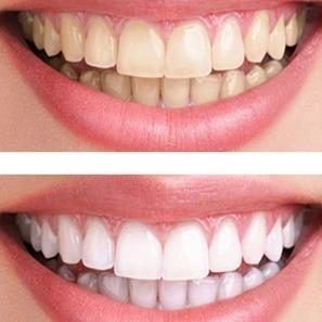 Teeth Whitening Tips | BangkokDental | Scoop.it