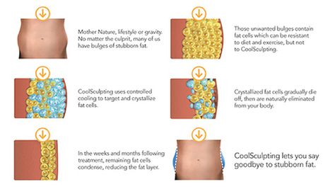 Cellulite removal, Body Skin Tightening with CoolSculpting Thailand Plus Thermage Bangkok,Thailand | Laser Facelift Skin tightening Bangkok, Ulthera, Coolsculpting by Zeltig, Thread lift, Thermage, Mini facelift Phuket Thailand | Scoop.it