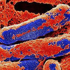 Researchers Keep Mum on Botulism Discovery: Scientific American   Virology and Bioinformatics from Virology.ca   Scoop.it