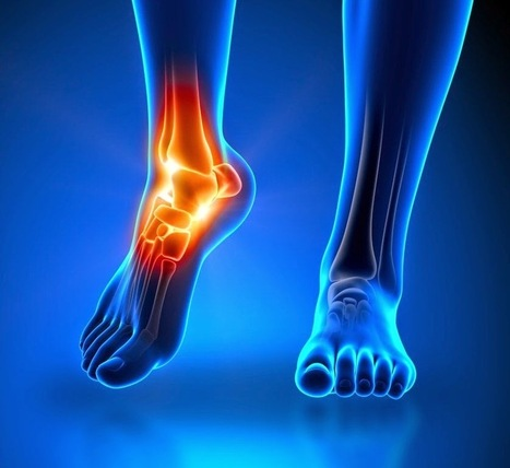 7 Easy Steps to Cure Numbness in Your Feet and Toes | Chiropractic Care | Scoop.it