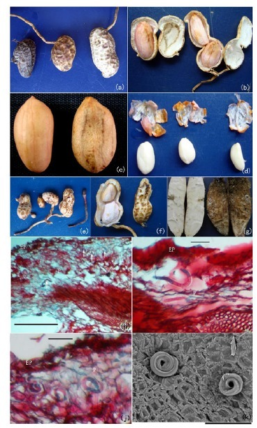 A new stem nematode associated with peanut pod rot in China: morphological and molecular characterization of Ditylenchus arachis n. sp. (Nematoda: Anguinidae) | Nature : beauty, beasts and curiosities... | Scoop.it