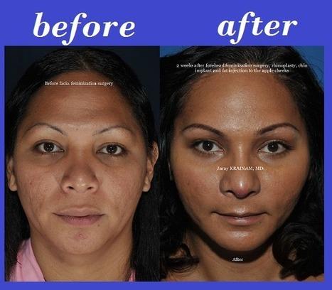 Facial Feminization Photos Thailand | Bangkok Aesthetic Surgery Center | The Best Plastic Surgery Clinic In Thailand | Scoop.it
