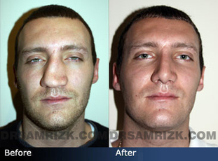 Non-Surgical Rhinoplasty | Pros and Cons | Plastic Surgery Blog | Get Good Plastic Surgery & The Best Nose Jobs in Goa, India | Scoop.it