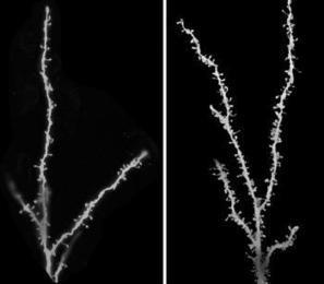 Children with autism 'have too many synapses in their brain' | Physics+neuroscience+cancer+imaging process | Scoop.it