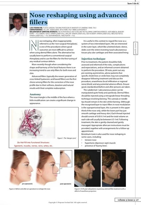Nose reshaping using advanced fillers - Dr. Piovano | Viso Giovane [senza bisturi!] | Scoop.it