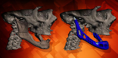 3D Printers To Make Human Body Parts? - Sci-Tech Today | 3DPrinting and medical applications | Scoop.it