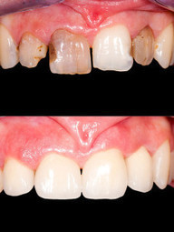 Restorative Dentistry Services in Diamond Bar, CA | Cosmetic Dentistry | Scoop.it