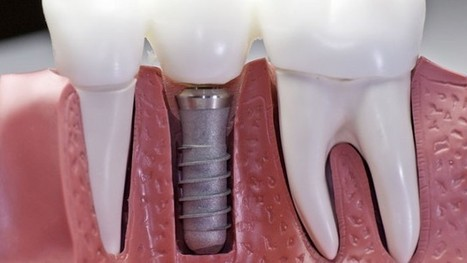 Why Costa Rica Dental Implants for Missing Teeth? - The Costa Rican Times | Economical Dental Care & Best Dentists in San Jose, Costa Rica | Scoop.it