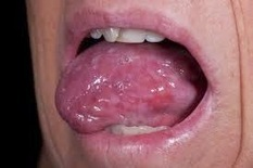 What is lichen planus and who effected with it   CURE HERBALS   Scoop.it