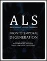 ALSUntangled review of GM604 is now available - ALS and Frontotemporal Degeneration | #ALS AWARENESS #LouGehrigsDisease #PARKINSONS | Scoop.it
