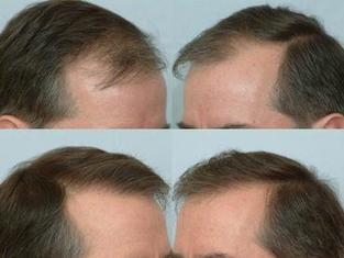 Hair Transplants Treatment Today   Royal Cosmetic Surgery   Scoop.it