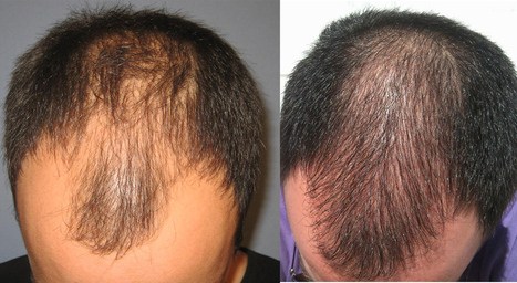 Finasteride Can Help Your Hair Growth Get Back To Track | Online Pharmacy | Scoop.it