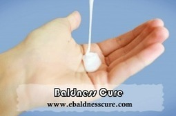 Different Kinds of Baldness Cure | Baldness Cure | Scoop.it