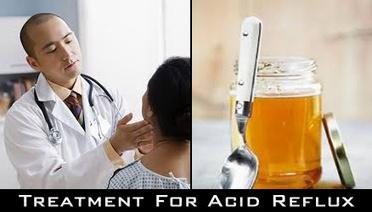 Treatment For Acid Reflux | Acid Reflux Remedies | Acid Reflux Remedies | Scoop.it