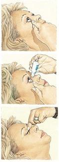 Cinco consejos sobre cómo aplicar las gotas para tratar el glaucoma | SALUD OCULAR: GAFA TÉCNICA, OJO SECO Y DEPORTE GRADUADA | Scoop.it