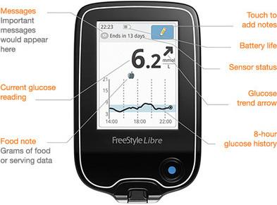FreeStyle Libre - Abbott Ambulatory Glucose Profile (AGP)   diabetes and more   Scoop.it