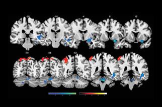 Lumosity's #Big Data pushes frontiers of neuroscience | Applied Neuroscience | Scoop.it