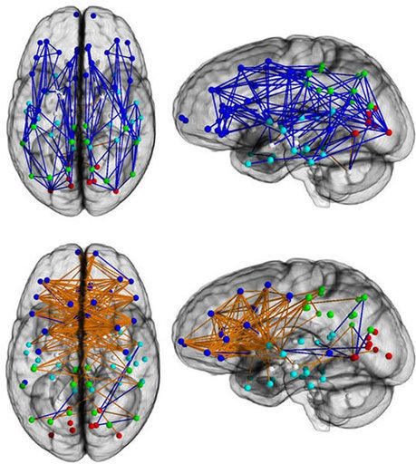 Connectivity: The Difference Between Men's and Women's Brains | Wiki_Universe | Scoop.it