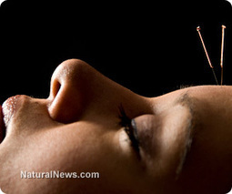 Acupuncture stimulates multiple brain regions, affecting a wide scope of pain dimensions | Acupuncture for the Nervous system and brain | Scoop.it