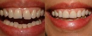 Cosmetic Dentistry Vancouver | Dentistry | Scoop.it