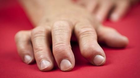 Fusion molecule found to cure rheumatoid arthritis in mice   Longevity science   Scoop.it