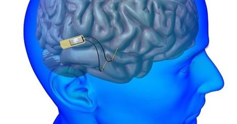 Des puces dans la tête... qui rendent intelligent | Le pouvoir du transhumanisme | Scoop.it