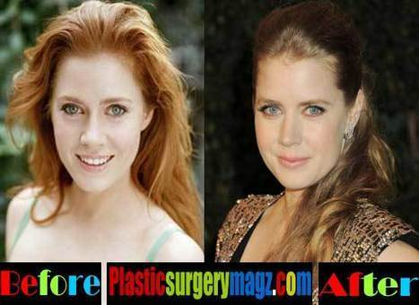 Amy Adams Nose Job Before and After Pictures | Celebrity Plastic Surgery News | Scoop.it
