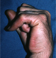 Know About Ulnar Tunnel Syndrome and Trigger Finger – Trigger Thumb   Health & Wellness   Scoop.it