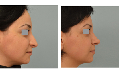 Reshape you nose to beautify yourself   Change Your Look   Scoop.it