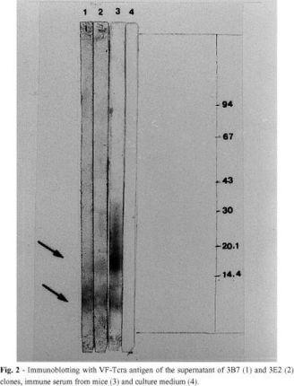 Revista do Instituto de Medicina Tropical de São Paulo - Production of monoclonal antibodies anti-Taenia crassiceps cysticerci with cross-reactivity with Taenia solium antigens | Teniasis (Taenia solium-Taenia saginata) | Scoop.it