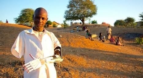 Des prothèses de bras imprimées en 3D à 75 euros pour le Sud-Soudan | Slate | 3D | Scoop.it