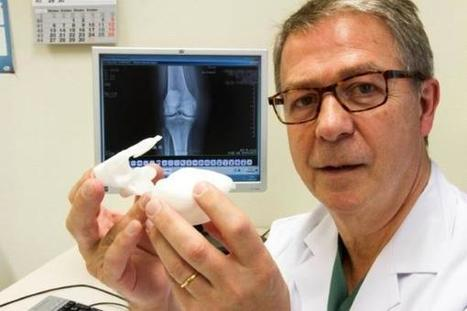 FDA hits pause on US marketing of Materialise X-Ray Knee Guide 3D surgical planning technology | 3D_Materials journal | Scoop.it