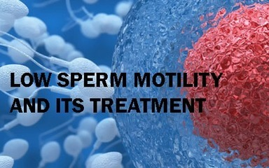 The Causes of Low Sperm Motility and How It Can Be Treated | Mens Health Solutions | Scoop.it