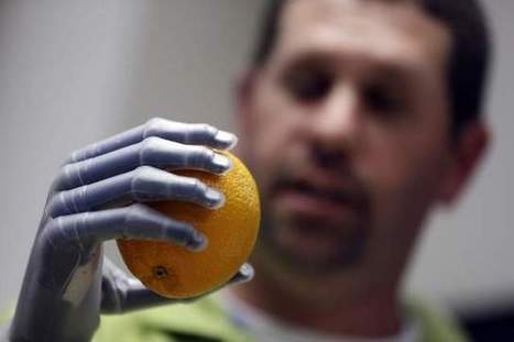 App lets amputees program their own bionic hands | EHR Success | Scoop.it