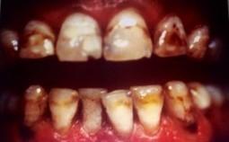 Facette dentaire en céramique - Dr Amouyal - Chirurgien dentiste Paris | Facette dentaire | Scoop.it
