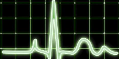 iWatch : à quelle heure, la crise cardiaque ? | Seniors | Scoop.it